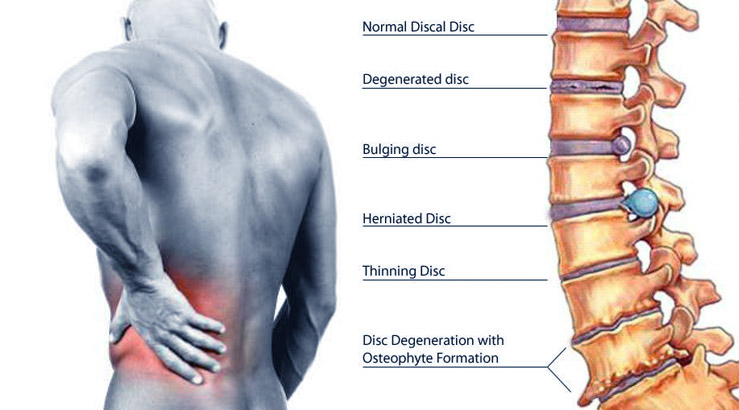 Treatment for Disc Injury